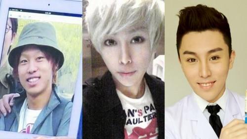 중국 성형중독남 친한의 얼굴 변천사./친한 웨이보, 온라인커뮤니티 캡처