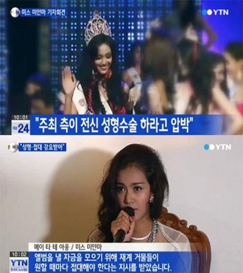 미스 미얀마 아웅의 가슴 성형에 대한 진실이 16일 MBC 리얼스토리 눈에서 밝혀졌다. /YTN 방송 화면 캡처