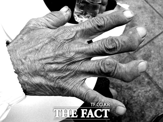 원폭 그리고 세월의 흔적 방사선 피폭과 고된 노동으로 인해 기형적으로 휜 한 할머니의 손가락./여의도=신진환 기자