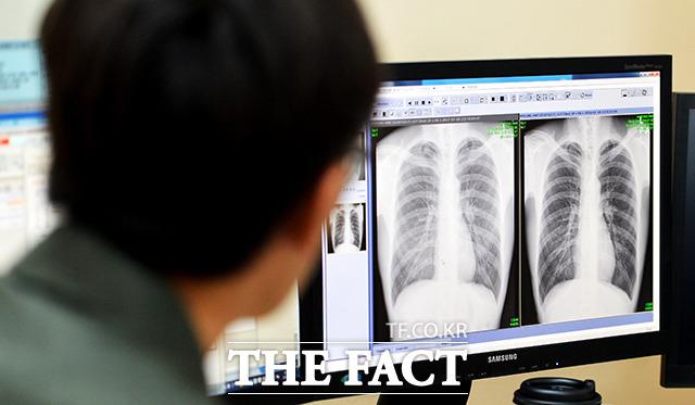 스트레스로 혈관이 심근육에 묻혀 정밀한 검사가 필요하다.