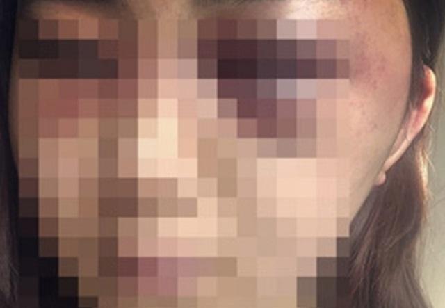 광주 데이트 폭행 피해 여성 A씨(사진)는 7일 전 남자친구를 데이트 폭력을 이유로 고소장을 접수했다. /페이스북 캡처