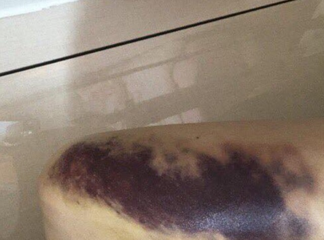 광주 데이트 폭행 피해자가 3월 피해 흔적을 공개하며 데이트 폭력의 심각성을 알렸다. /페이스북 캡처