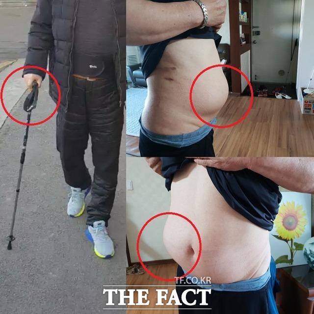 구 씨는 수술 이후 복부 비대칭을 잡아주는 복대 없이 일상 생활이 불가능하며 보행 중 늘 지팡이를 사용해 걷고 있다고 말했다. /제보자 제공