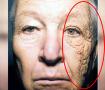 1급 발암물질 자외선의 충격적인 위험성